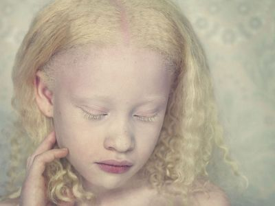 Gorgeous. #beauty #albino #weareallbeautiful these pictures are amazing!