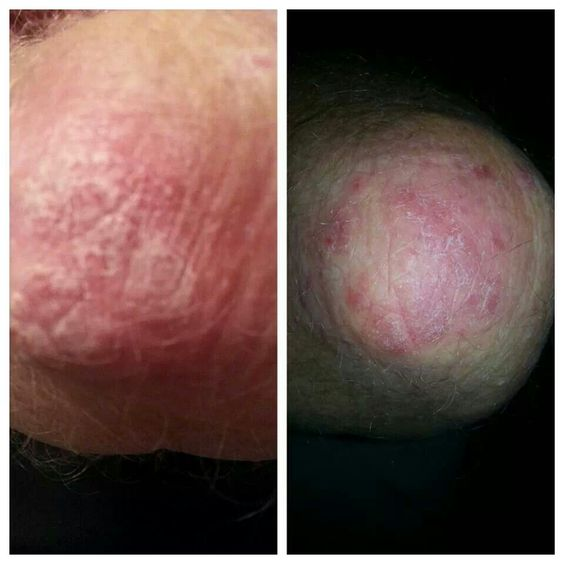 If you haven't noticed, given where they are on the body, these psoriasis patches need SPECIAL treatment 1