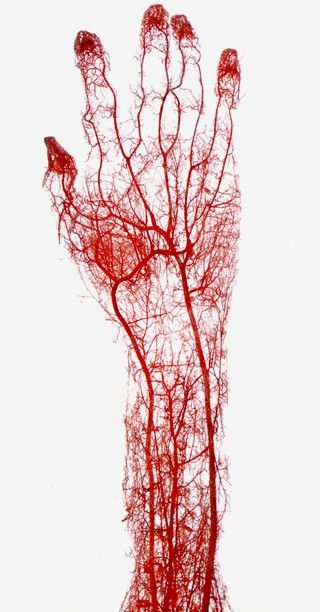 Acid-corrosion cast of the arteries of the adult human hand, by anatomist Gunther von Hagens.:
