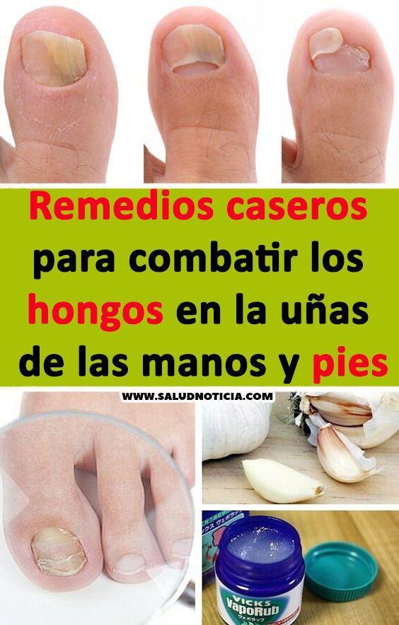 remedios caseros hongos uñas de las manos