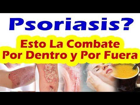 remedios caseros para la psoriasis en todo el cuerpo