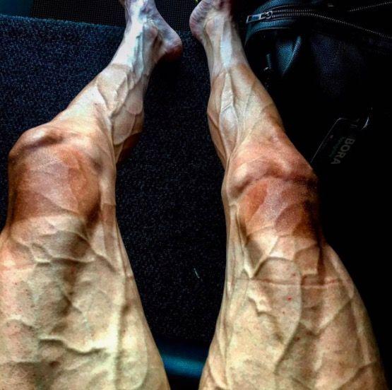 FOTO Tour-renner baart opzien met afgepeigerde benen|Telesport| Telegraaf.nl