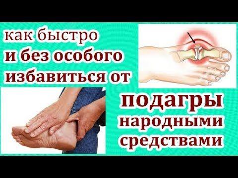 Артрит запястья кисти руки лечение