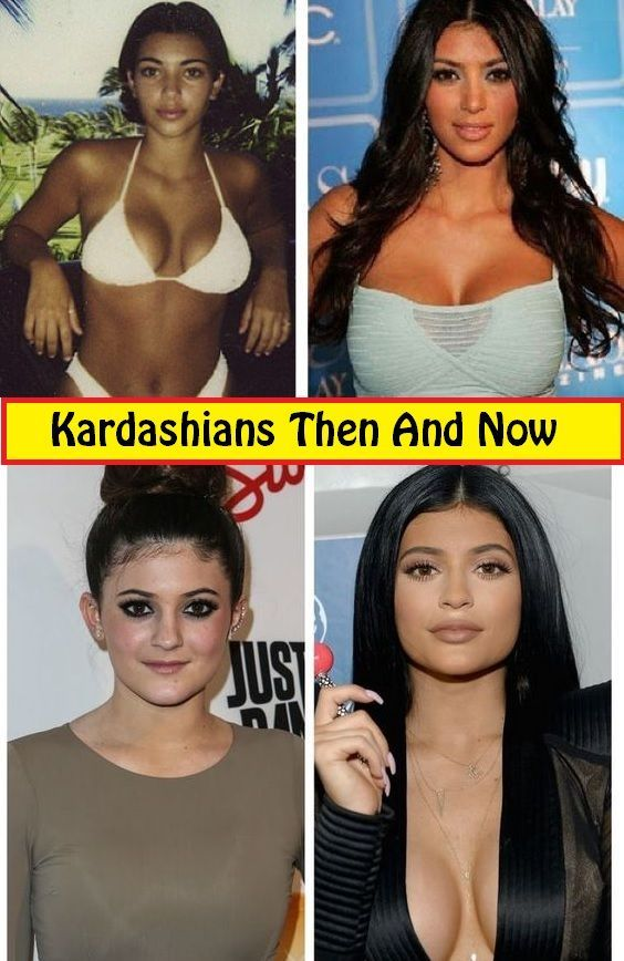 Wow This List Is Very Funny Just Click To See More Embarrassing Moments Celebrities Meme Faces Celebrities Then And Now