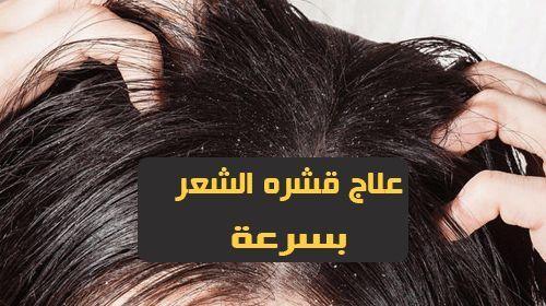 علاج قشره الشعر بسرعه إذا كنت تعاني من قشرة الشعر ولم يعمل معك أي شامبو أو كريم حتى الآن استخدمي زيت جوز الهند هذه المرة نعم تعمل الزيوت Beauty Movie Posters