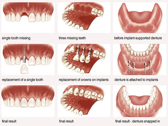 #Dental #Implants for #Multiple Missing Teeth. When multiple teeth are missing or failing, replacing them with dental implant treatment. http://confidentdentalcare.in