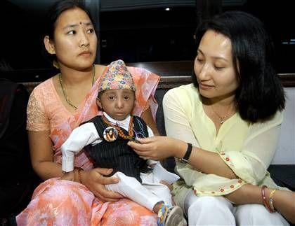 En la actualidad existe un nepalí llamado Khagendra Thapa Magar que ostenta el récord del mundo, midiendo apenas 64 cm. En la aldea donde vive los aldeanos le llaman el pequeño Buda: su peso al nacer fue tan solo de 600 gramos.