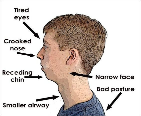 Mouth breathing or an open mouth can change the shape and appearance of a child's face, and can also lead to a number of health concerns.