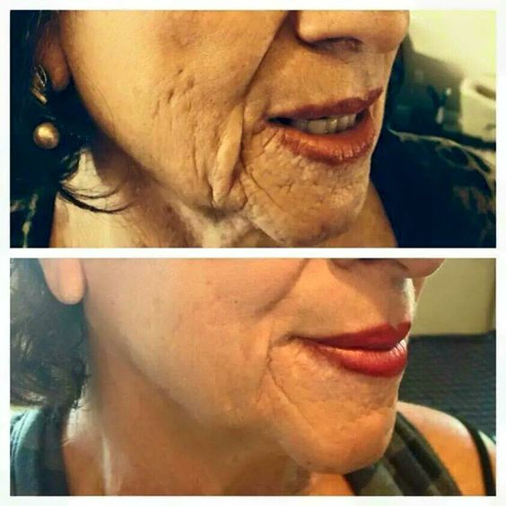 Who wouldn't want these results? Try it today!  #antiaging Angieaxtell.nerium.com
