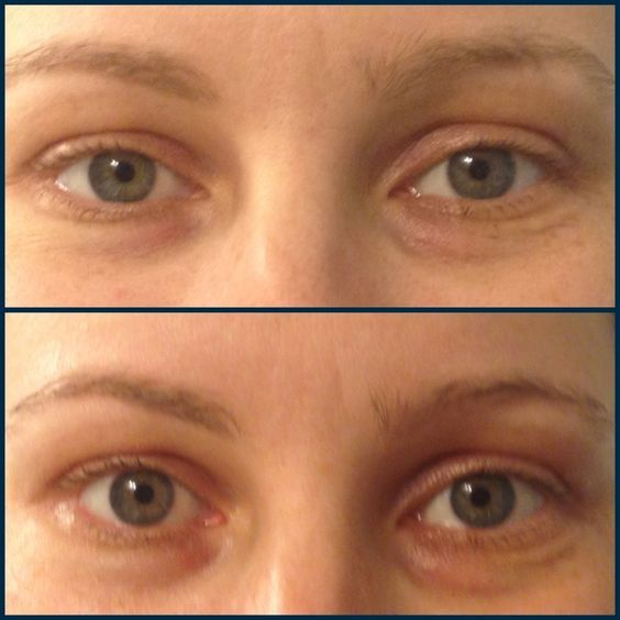 Before And After Left Timewise Firming Eye Cream Right