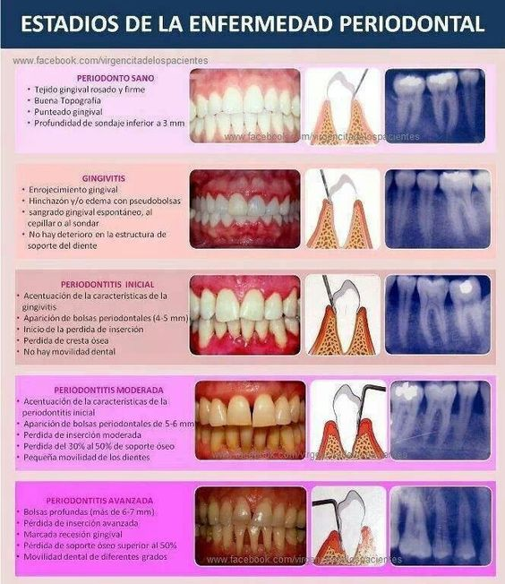 Periodontitis stages