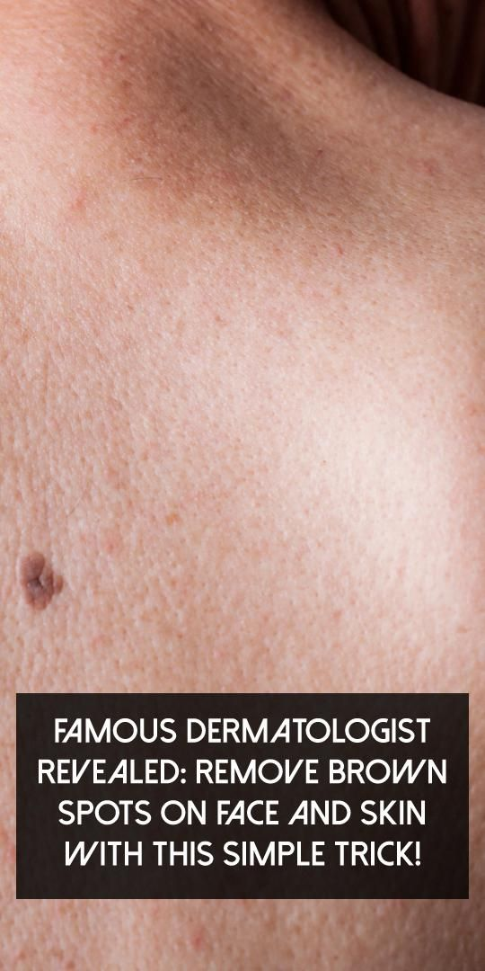 Health Fitness Tip Health Fitness Tips Brown Spots On Face Spots On Face Brown Spots On Skin