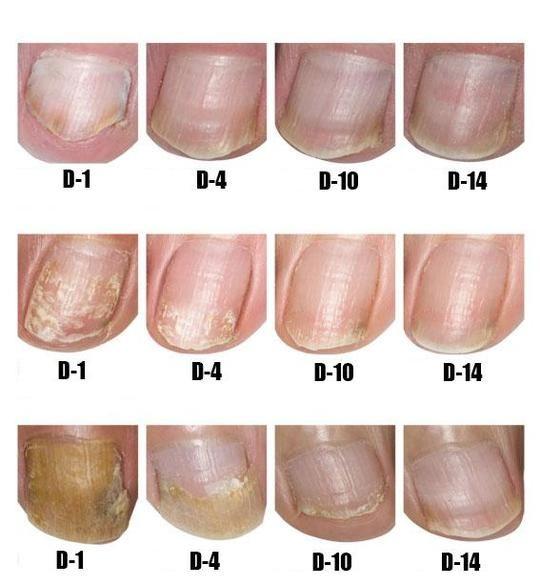 Nail Repair Cream Nail Repair Toenail Fungus French Tip Acrylic Nails