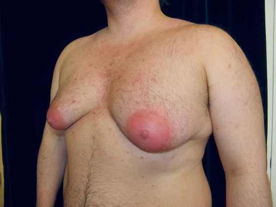Male enlarged breasts weightlifting
