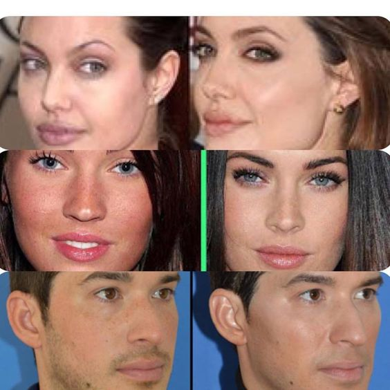 The Face change with Filler And cannula in special treatment FACE RESTAURATION…
