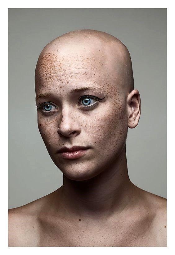 Decadentwerewolfflower Freckles Bald Head Bald Heads Bald Women