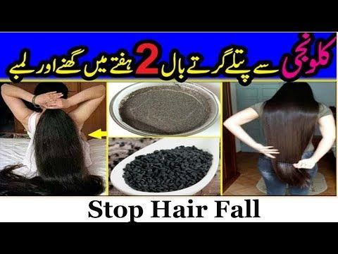 Fast Hair Growth Tips Stop Hair Fall And Grow Long Thicken Hair With Blackseeds Youtube In 2020 Hair Fall Remedy Hair Growth Tips Fall Hair