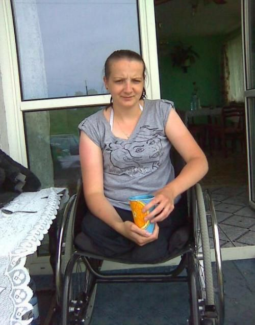 Legless Amputee Woman Yahoo Image Search Results