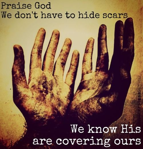 Scars -  praise God we don't have to hide scars we know his are covering ours