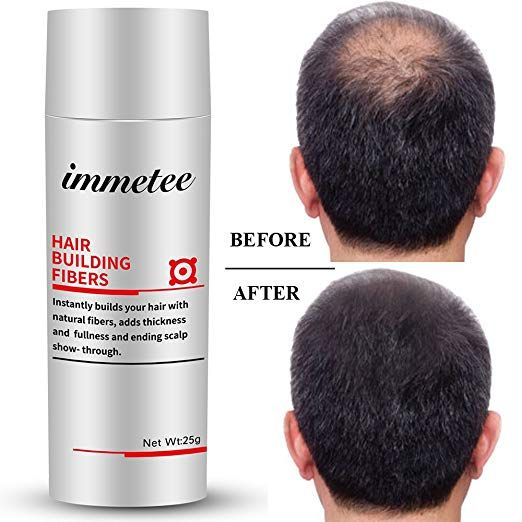 Immetee Keratin Hair Building Fibers Powder Conceal Instantly For Thinning Hair Cover Up Hairstyles For Thin Hair Natural Hair Loss Thin Hair Styles For Women
