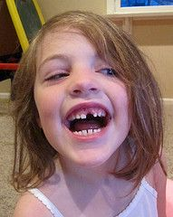 Look Mom, my first missing tooth!