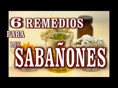 6 Remedios Caseros Para Los Sabañones Remedios Remedios Caseros Remedios Naturales