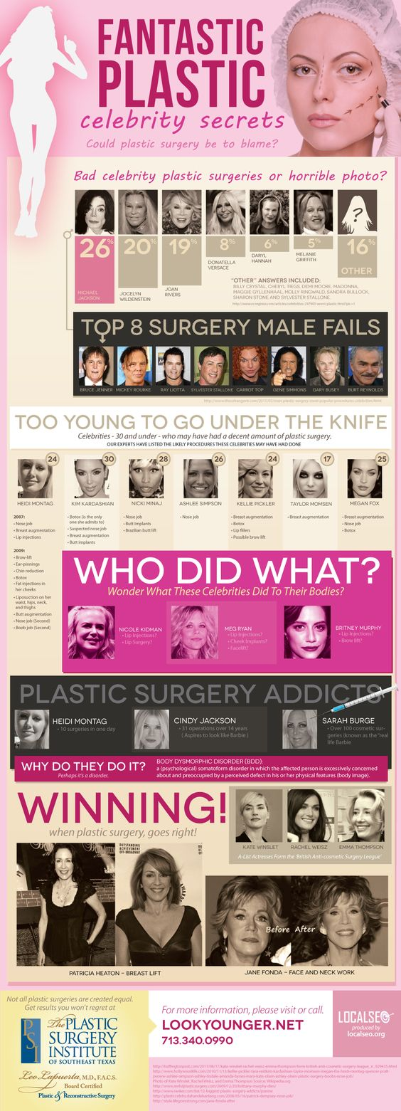Infographic detailing the biggest celebrity plastic surgery fails and wins..