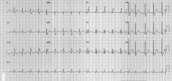 Sinus tachycardia with incomplete RBBB