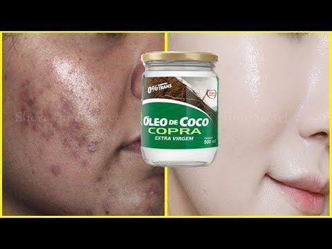 Oleo De Coco E Bicarbonato Receita Magica Para Apagar Rugas
