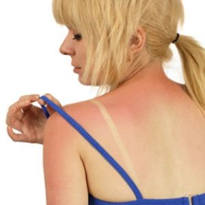 Just in TIme -- How To Treat Sunburn With Herbal Remedies