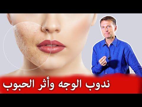 سكارو كريم لعلاج اثار حب الشباب للبشرة الدهنية و علاج حفر الوجه Beauty Skin Care Routine Skin Care Beauty Skin Care