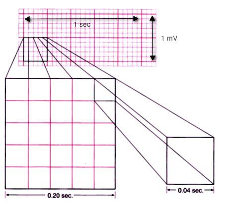 powerpoints strips sample ekg
