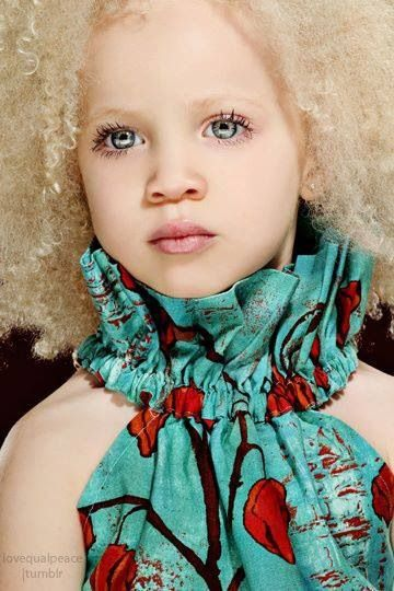 Beautiful African Albino child.  What is white anyway?    What is black anyway?   6months of darkness, makes Nordic people & Irish etc... have no need for the level of sunprotection / eye protection as in continents with blazing sun every day of the year almost. -- This is an easy thing to see.