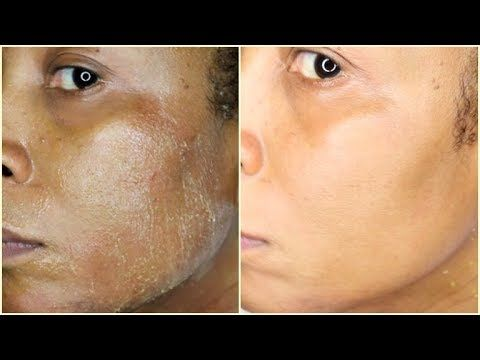 Natural Chemical Peel At Home Remove Acne Wrinkles Dark Spots Blemishes Khichi Beauty Youtube Chemical Peel Chemical Peel At Home Natural Aging Skin Care