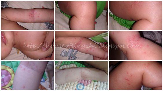 House of Lingzhi ♥: Naema : An Eczema survivor story