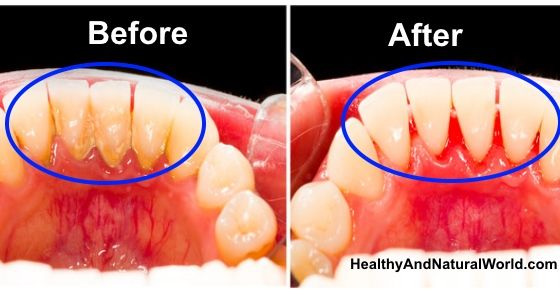 Save money and time by removing plaque at home without going to the dentist.