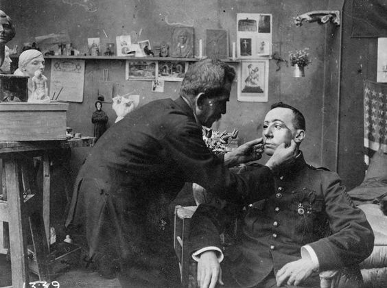 French soldier whose face was mutilated in World War I, being fitted with a mask made at the American Red Cross studio of Anna Coleman Ladd (1918). Ladd's services earned her the Légion d'Honneur Croix de Chevalier and the Serbian Order of Saint Sava.