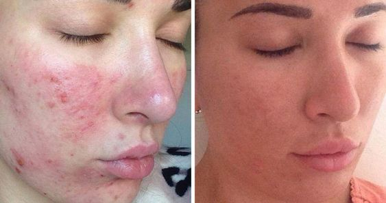 تعرفي على التقشير الكيميائي للوجه والتخلص من التجاعيد وجميع مشكلات البشرة Dermapen Nose Ring Nose