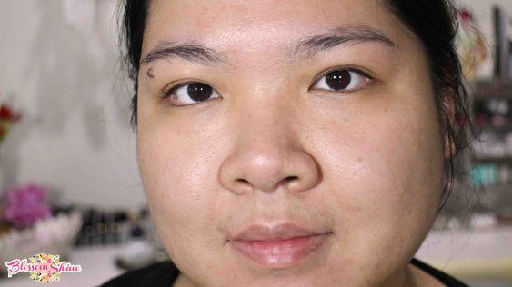 Face before pakai Avoskin PHTE - kulit kusam dan warna kulit tidak rata, banyak bekas jerawat