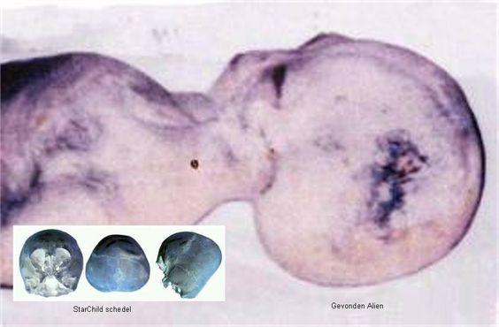 Star Child body and x-rays