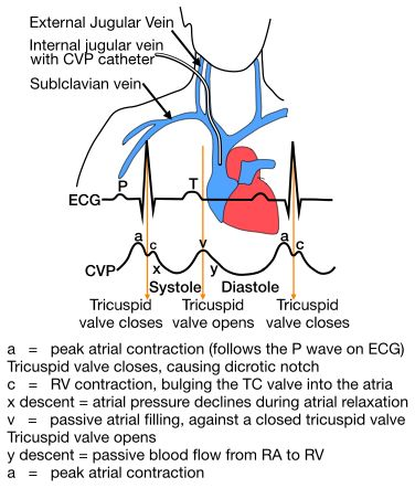 Central Venous Pressure Monitoring. Normal Sternum: 0–14 cm H2O, Midaxillary line: 8–15 cm H2O. CVP can be measured by connecting the patient's central venous catheter to a special infusion set which is connected to a small diameter water column. If the water column is calibrated properly the height of the column indicates the CVP. In most intensive care units, equipment is available to measure CVP continuously. Normal range for CVP is 3–12 cm water pressure