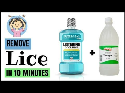 How To Get Rid Of Lice With Vinegar And Listerine Fast At Home