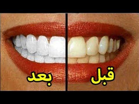 سر بياض أسناني أسرع طريقة لتبييض الأسنان خلال دقائق في المنزل Youtube Healthy Life Convenience Store Products Tina