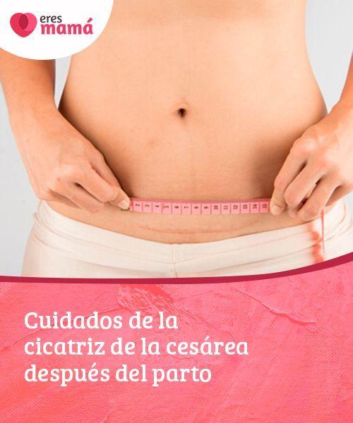 Dieta para despues del embarazo por cesarea