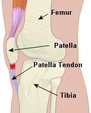 The patella - a sesamoid bone