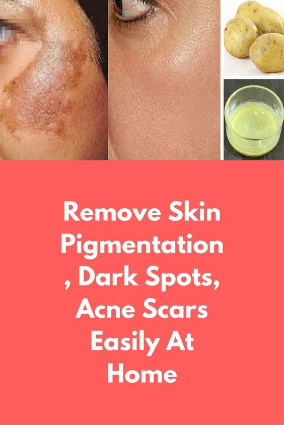 Pin Auf Home Remedies For Skin Care