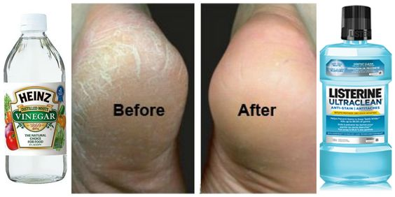 How to fix cracked, dry feet INSTANTLY! I can't believe I haven't tried this before - it works unlike anything else I've ever done before! Just mix vinegar with Listerine and soak your feet for about 20 minutes (with hot water). Grab a clean cloth and wipe feet off. The dead skin cells will come off LIKE MAGIC!  Repin this so you can do it later - it's a miracle DIY!