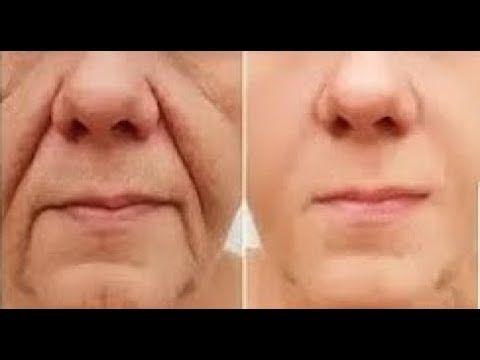 افضل كريمات علاج التجاعيد والانتفاخات والهالات السوداء تحت العين نهائيا Best Creams To Treat Eye Wrinkle Treatment Eye Wrinkle Wrinkle Treatment