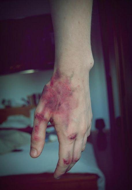 Blood, hurt