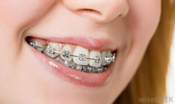 Pin On Best Orthodontist Miami